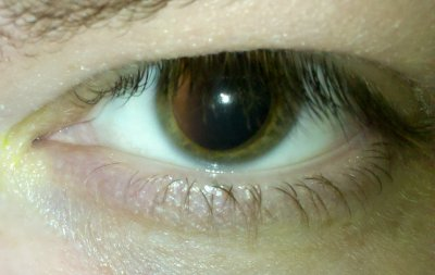 Dilated left eye on Wednesday