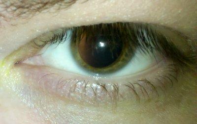 Dilated left eye on Wednesday