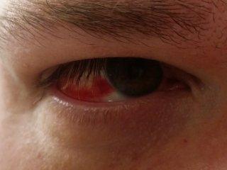 Right eye, Saturday morning