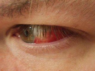 Left eye, Saturday morning
