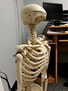 On September 8, I encountered another mangled skeleton at Capitol Orthopedics - this one missing its face. Just like the first one, I also asked what happened to him. Turns out that he didn't pay his bill, either.