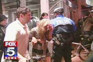 News image of the woman who was struck by a projectile during the Georgetown march