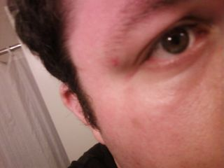 Ouch! This is the bruise I got next to my eye when a modesty panel on a desk I was assembling at work fell on my face. Thankfully, the bruise didn't last long, and was not very noticeable.